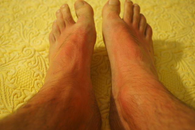 I mírné spáleniny kůže po slunění jsou bolestivé | foto: Fotobanka Pixabay